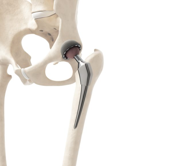 hip replacement surgery singapore - hip replacement cost in singapore