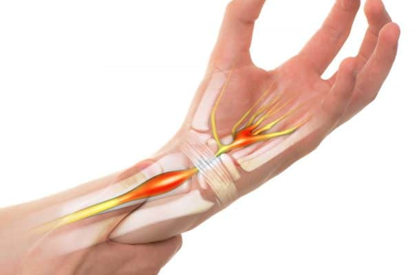 Carpal Tunnel Syndrome – Treatment and Symptoms