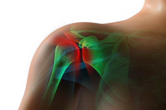 How to Release a Frozen Shoulder